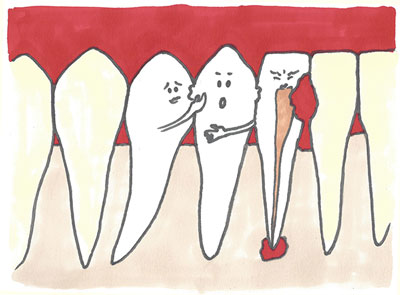 Entre les Dents